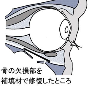底 骨折 と は 眼窩